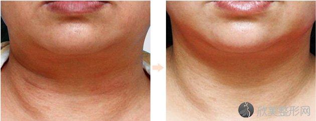 深圳太美医院告诉你激光去颈纹怎么形成的?激光去除颈纹的好处 特点 效果