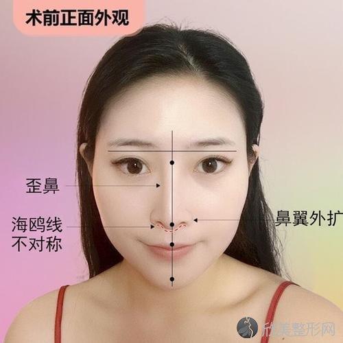 兰州亚韩和兰州华夏鼻整形哪家好 歪鼻矫正有优势吗?风险大不大?