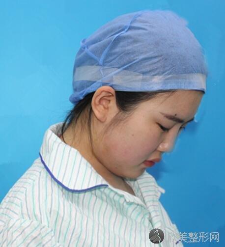 泛美韩红抽脂案例反馈 医院简介案例