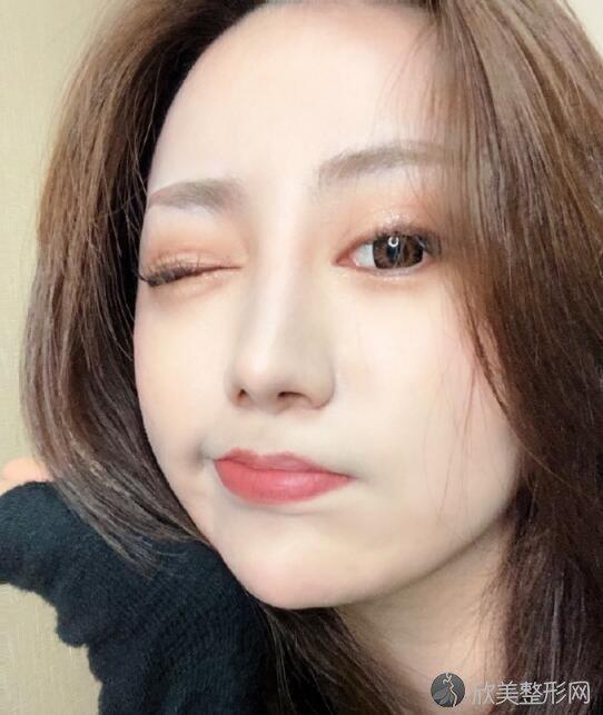 曹仁昌修复双眼皮靠谱吗?技术和案例图清单
