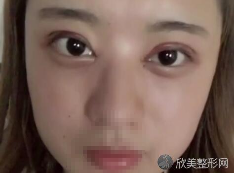 陈海良双眼皮价格和案例效果图 看完会激动吗?