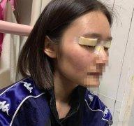 胡洋红做双眼皮手术全过程分享~来看真实案例