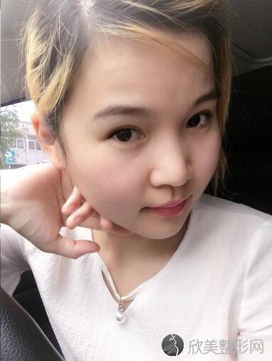 北京八大处杨斌下颌角外翻整容案例 一张脸对颜值有多大影响