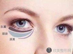 眼袋要怎样切才好 内切和外切大对比