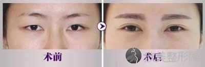 广州紫馨医疗美容医院做双眼皮怎么样?口碑如何?附医院项目价格表