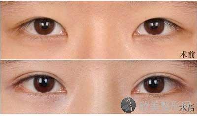广州韩妃美容医院口碑如何?附双眼皮真人案例图+医院项目价格表