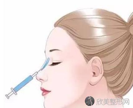 玻尿酸隆鼻效果怎么样?