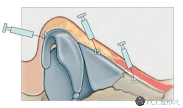 玻尿酸隆鼻效果如何?