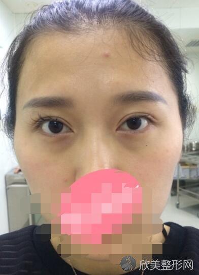 深圳雅涵整形医院正规吗?做双眼皮好不好?