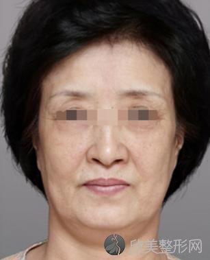 面部玻尿酸除皱需要多少钱?