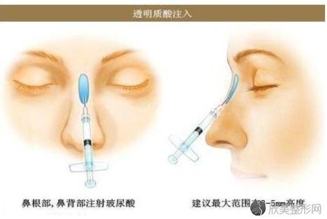 北京玻尿酸隆鼻价格是多少?