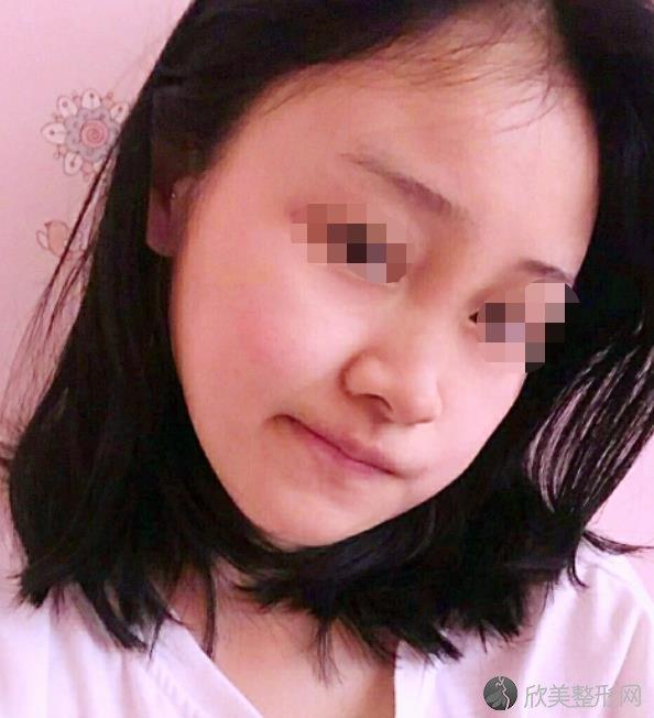 深圳阳光罗志敏医生做隆鼻手术过程分享~附上价格表