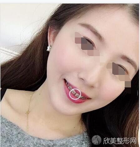 沈阳杏林朱石江案例分享~内附牙齿矫正真实例子
