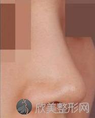 广州隆鼻的医生