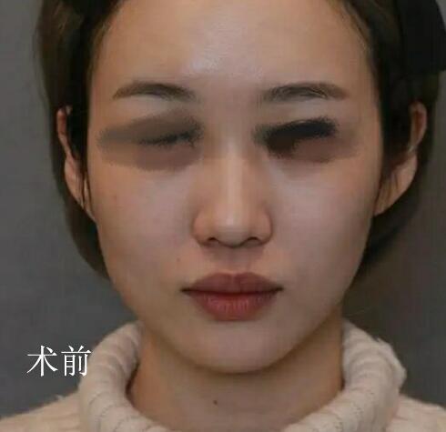 八大处杨欣隆鼻案例?隆鼻三个月术前术后对比图_价格表更新