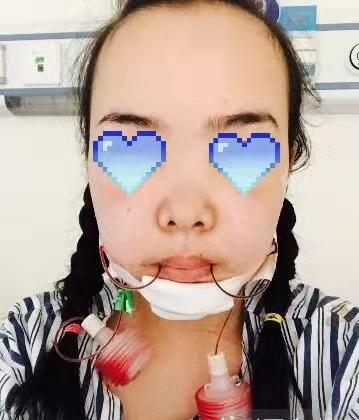 八大处杨欣微创悬吊案例?隆鼻术前术后对比图