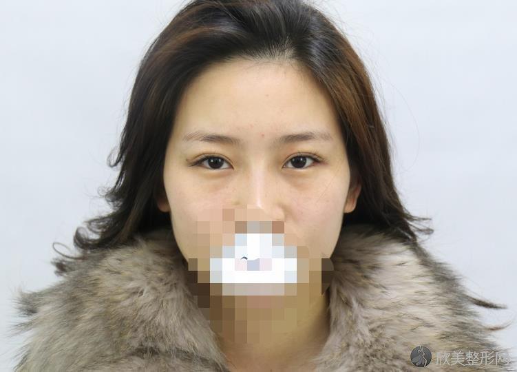 沈阳百嘉丽刘医双眼皮案例及价格表分享~真实的效果如何