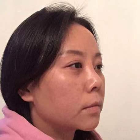 八大处王太玲提肌多少钱?耳软骨复合隆鼻顾客反馈对比图