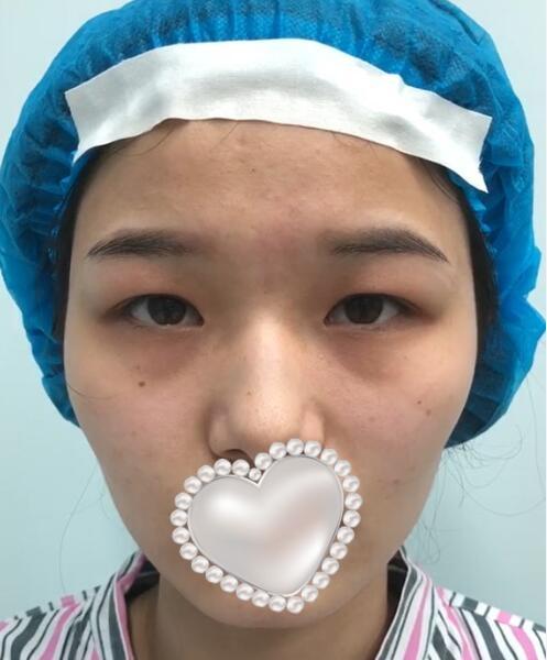 八大处王太玲外切眼袋怎么样?双眼皮顾客术后反馈案例_收费标准