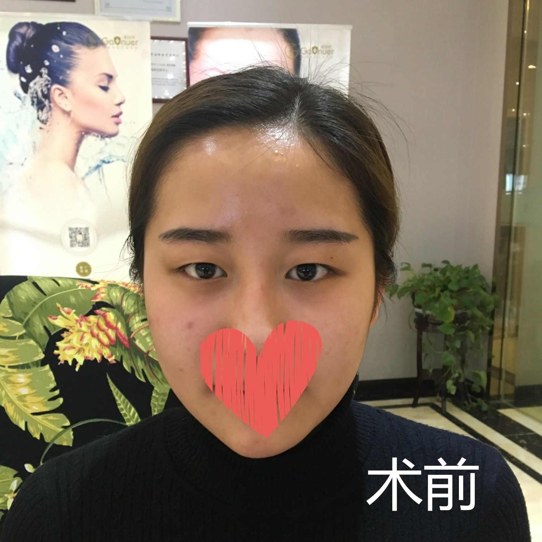 八大处尹琳双眼皮修复怎么样?隆鼻三个月术前术后对比图_价格表更新