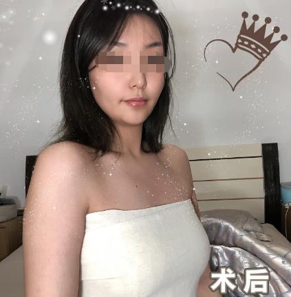 北京乳头矫正医院哪家好