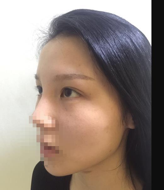 成都做双眼皮修复哪家医院好