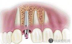 同安中医医院牙齿矫正多少钱?价格表参考