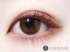 双眼皮修复术后该注意哪些问题?