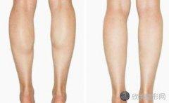 瘦腿针反弹后会更粗吗?