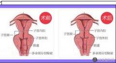 韩式缩阴手术是什么样子的?