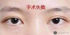 割双眼皮失败是什么样子的?
