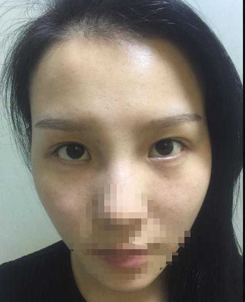 双眼皮失败的八种图片,附双眼皮失败修复案例