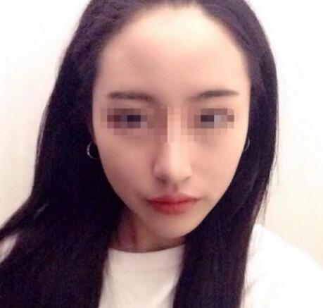 北大崔永言取生长因子怎么样?瘦脸针术前术后对比图
