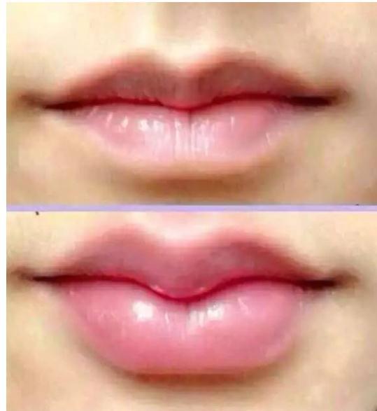 花瓣唇和嘟嘟唇区别图,附嘴唇整形案例