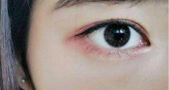 眼部修复的手术价格是多少钱