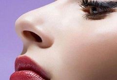 隆鼻后能不能吃海鲜 隆鼻后需要注意什么