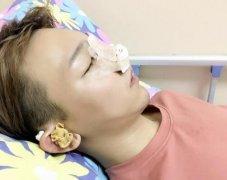 隆鼻后冰敷需要多久能消肿