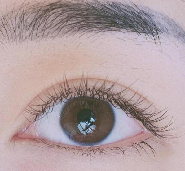 双眼皮拆线怎么拆才能不留下疤痕
