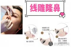 埋线隆鼻手术属于哪种类型?医治方法有哪些?