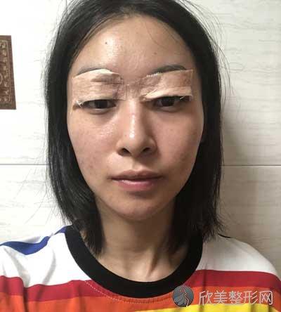 雅美整形医疗美容医院全切双眼皮真实案例分享,术后160天对比图