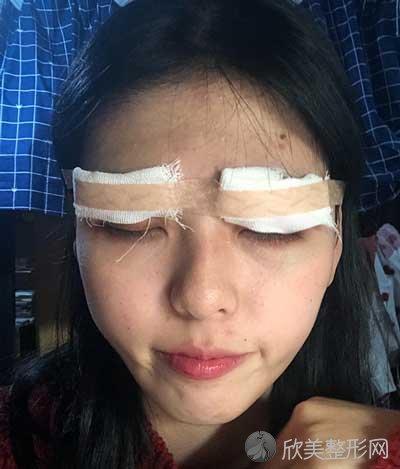 成都成美王立鹏医生做眼综合手术真人案例分享,术后两个月恢复效果一览