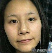 华美紫馨秦晓医生自体脂肪面部填充真人案例分享,30天恢复效果明显