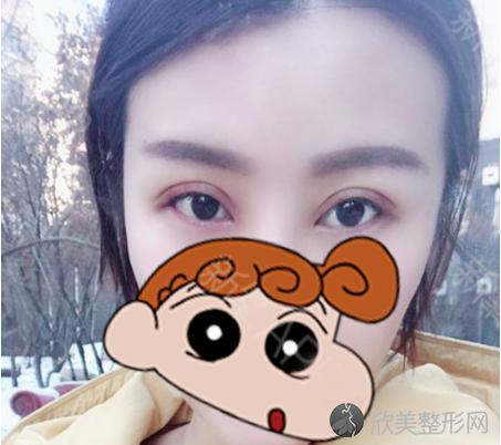 找上海美联臣范荣杰做的双眼皮 术后30天效果恢复得非常不错!