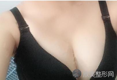 北京叶子整形李明为我做的胸 假体隆胸60天术后效果实在是太好了