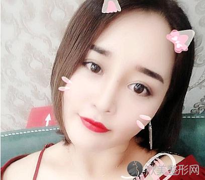找北京八大处刘珍君做的双眼皮 术后75天效果对比真的好极了
