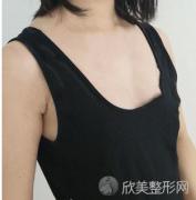 北京中日友好医院曾高做假体隆胸怎么样?来看真人案例
