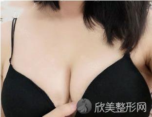 找北京中日友好的曾高做的胸 假体隆胸90天效果对比真的非常不错