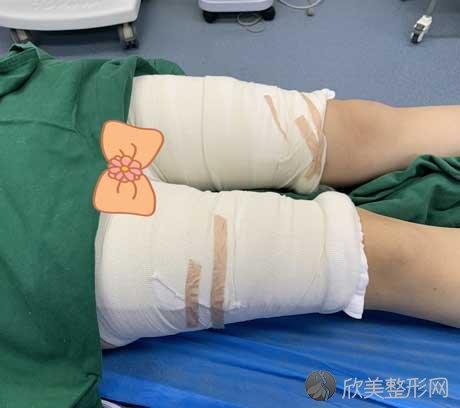 成都军建医院做吸脂瘦大腿手术怎么样?附真实案例分享