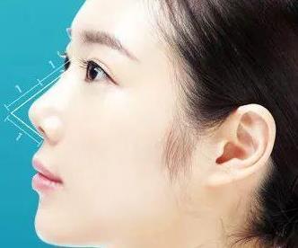 隆鼻后人中长是怎么回事?有改善方法吗