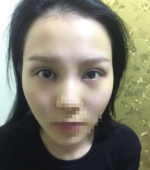 武汉做双眼皮修复手术哪家医院比较好